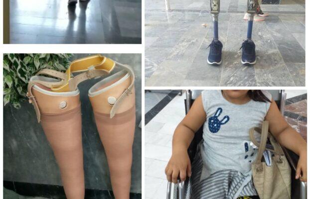 ساخت پروتز پاهای ثمینه جان
